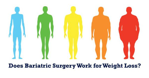 Does Bariatric Surgery Work for Weight Loss?